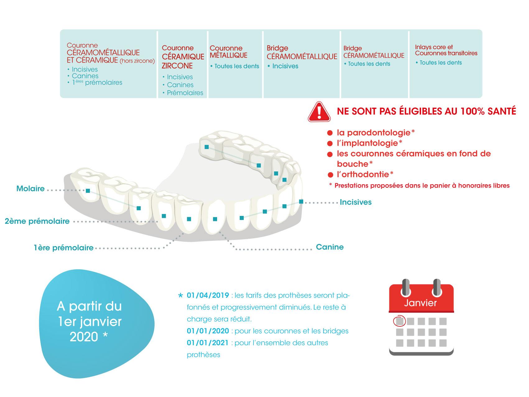 Les prothèses concernées par le 100% santé